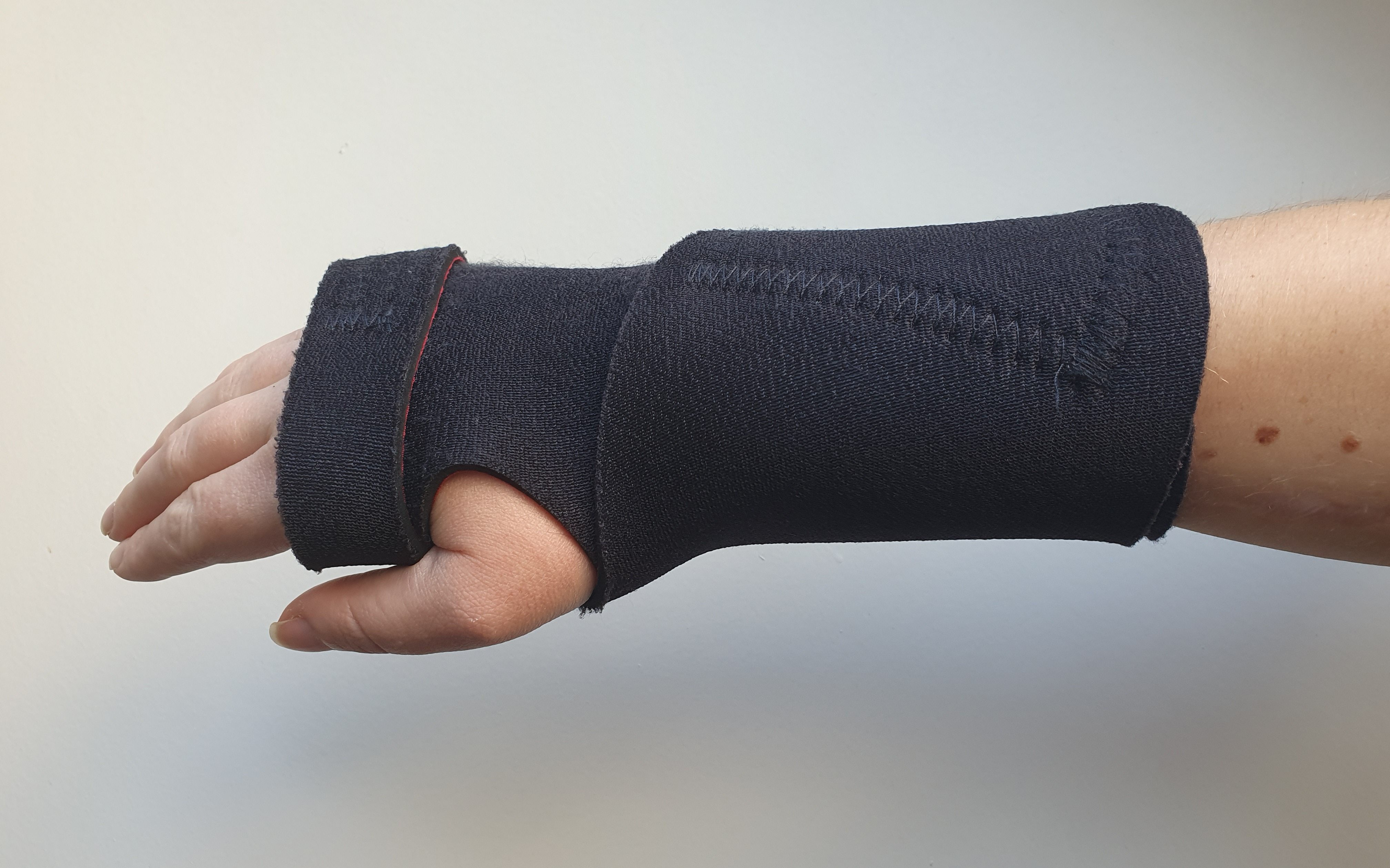 Neoprene wrist splint secured across the back of the hand and wrist by velcro straps